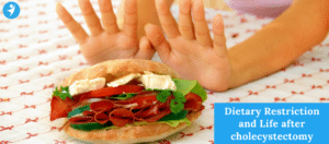 Dietary Restriction after cholecystectomy