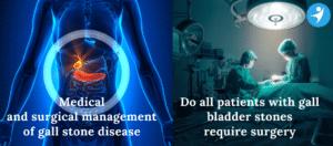 Gall Bladder Surgery | Gall Bladder Stone Treatment in Bangalore