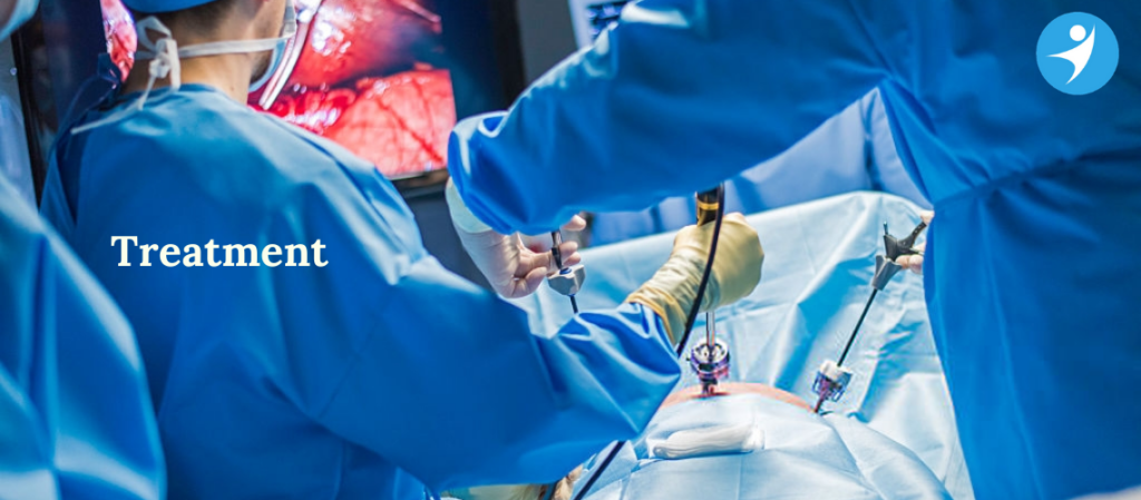 Laser Surgeon for Piles in Bangalore