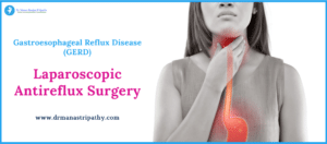 Laparoscopic Antireflux Surgery in Bangalore
